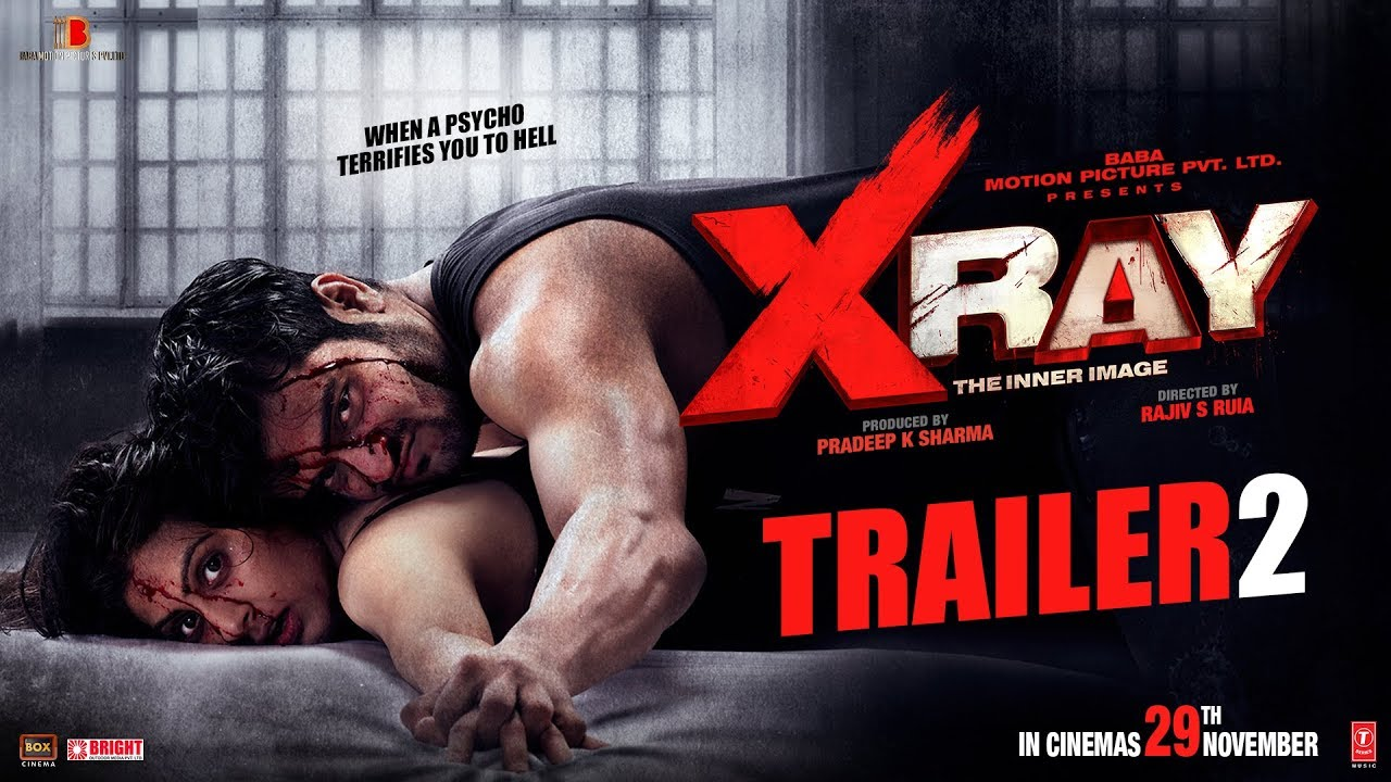 X Ray – The Inner Image Movie Review